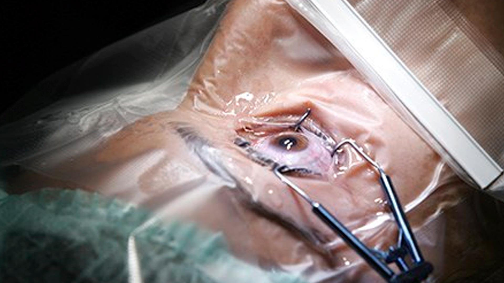 Resultado de imagem para cirurgia de glaucoma